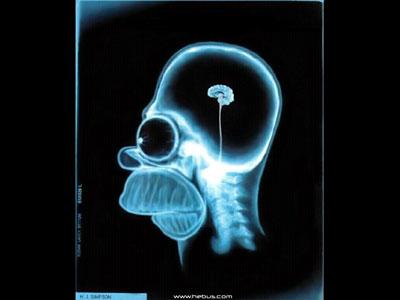 El cerebro de Homer Simpsom